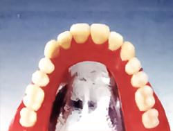 implant_img 02