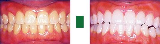 whitening_teeth 01